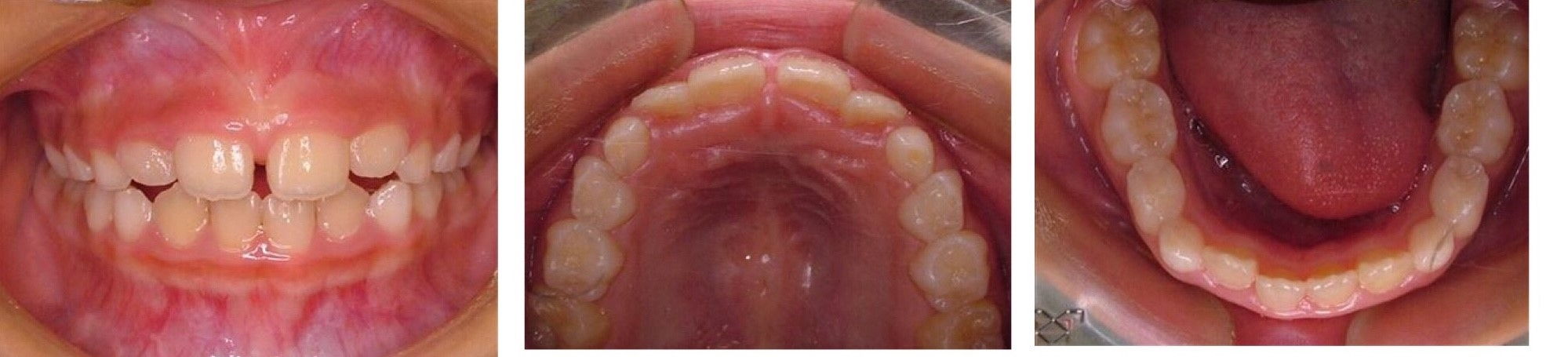 歯 っ 乳歯 すき